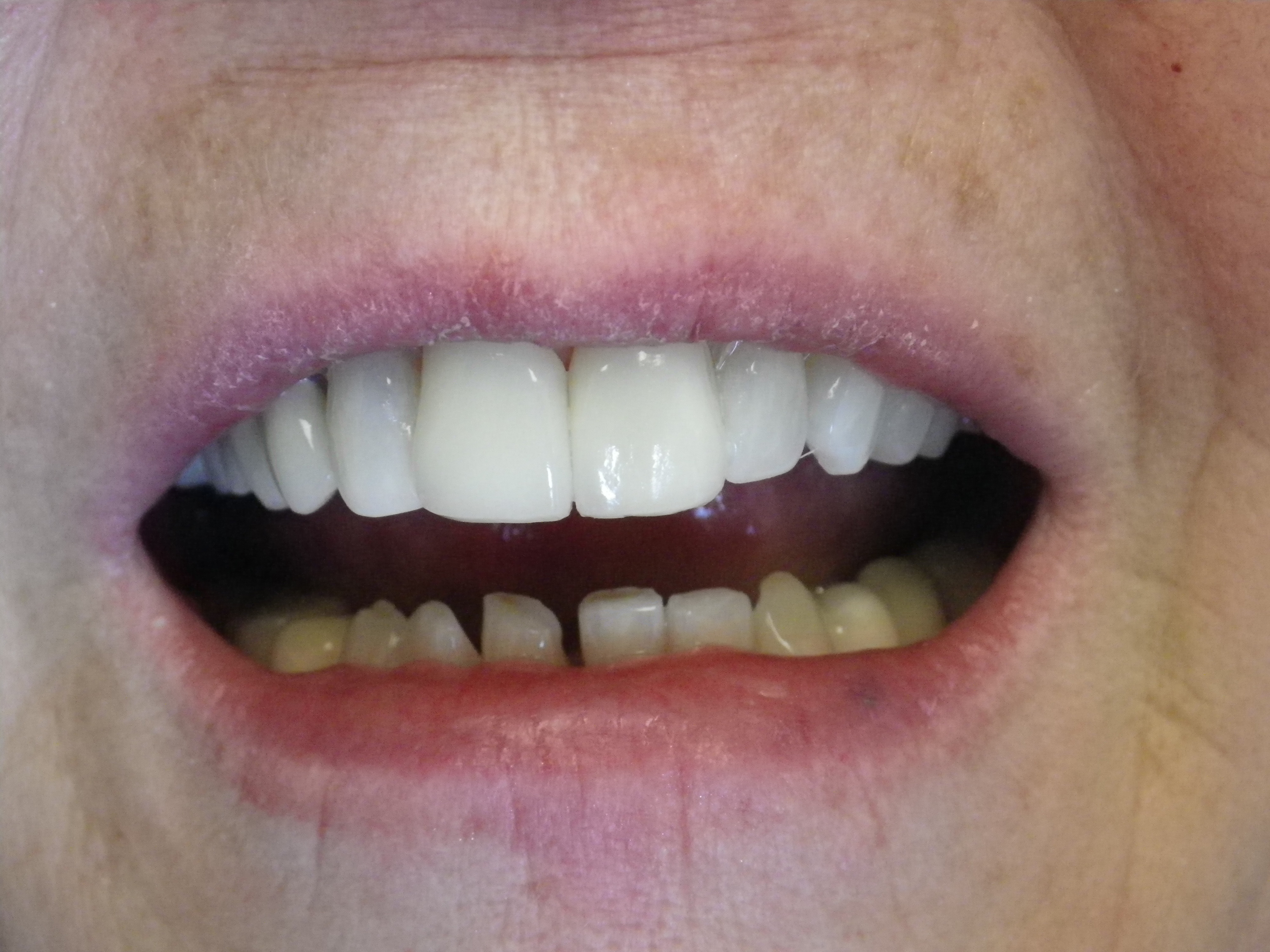 After: Dr. Juriansz's completed veneer