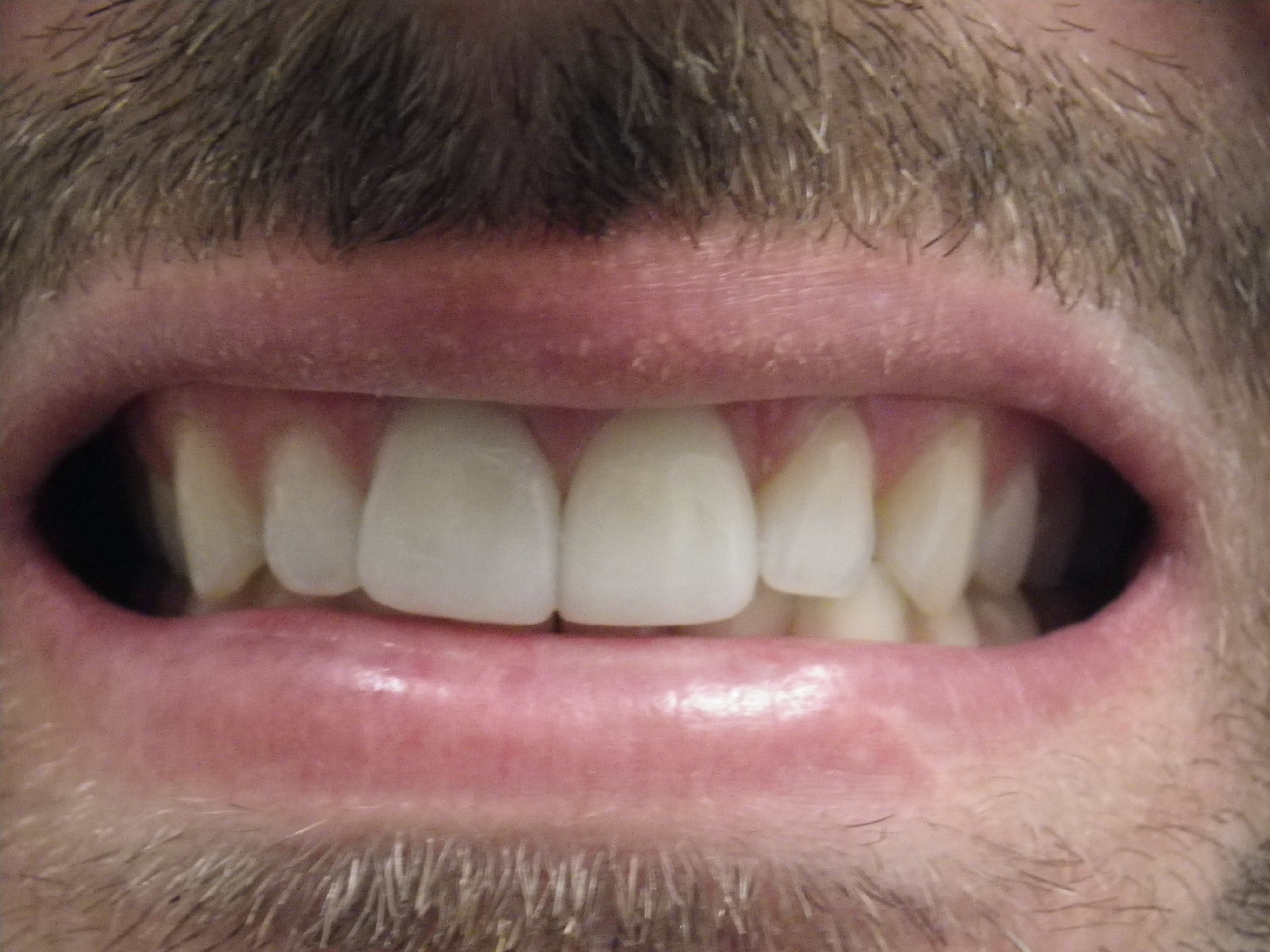 After picture of a veneer competed by Dr. Juriansz